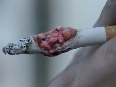 cancer and cigarettes